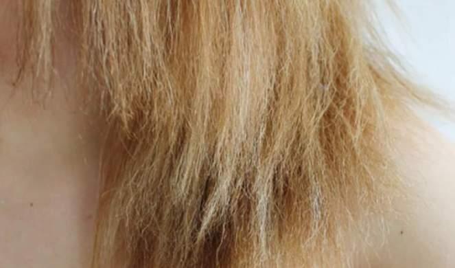 cabelo-elastico